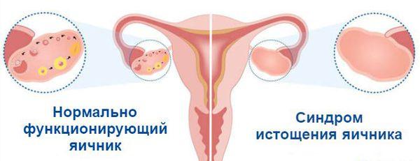синдром раннего истощения яичников и его вид