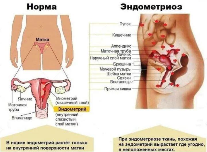 эндометриоз и его симптомы