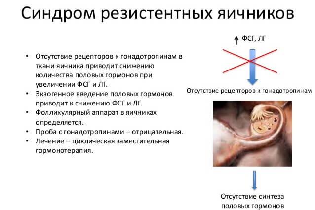 синдром резистентных яичников информация