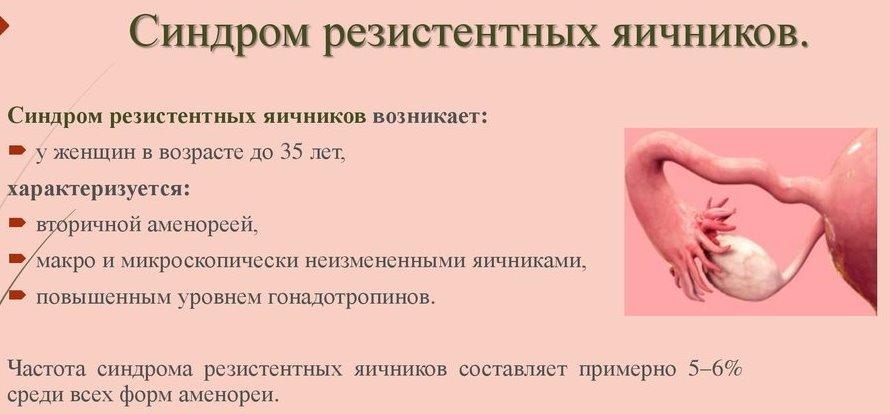 причины синдрома резистентных яичников