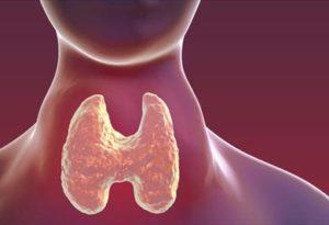изменения в щитовидке