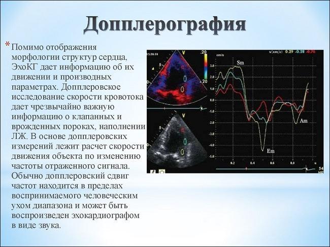 допплерометрия при беременности и ее особенности